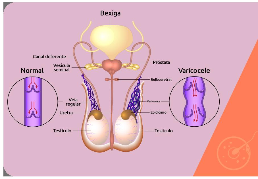 Orchitis prostatitis varicocele gyógyszer