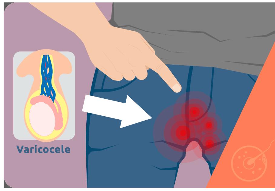 Prostatitis és varicocel Prosztatit védi